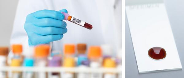 คนไข้ธาลัสซีเมียควรทานเลือดจระเข้หรือไม่